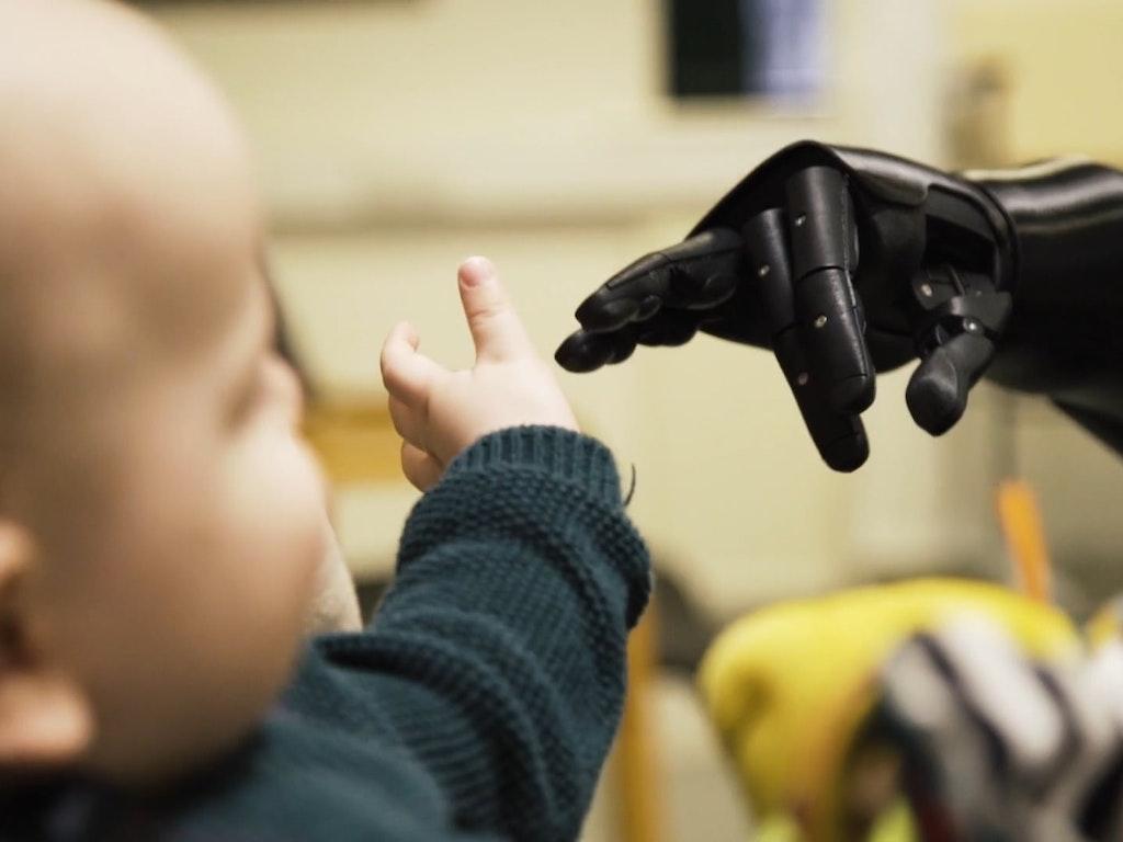 Open Bionics // Danny Florence