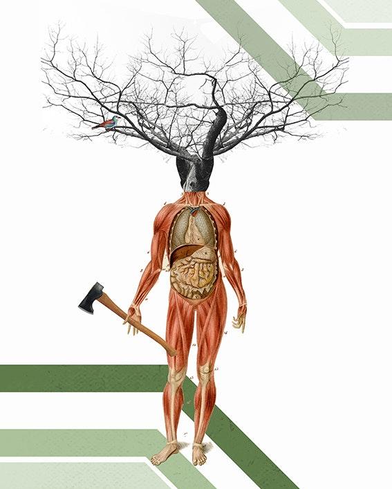 Hombre árbol