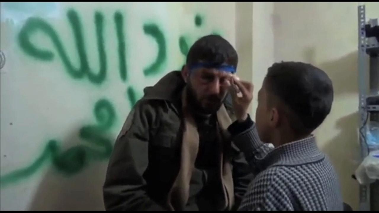 AGONY OF ALEPPO - children in Syrian war