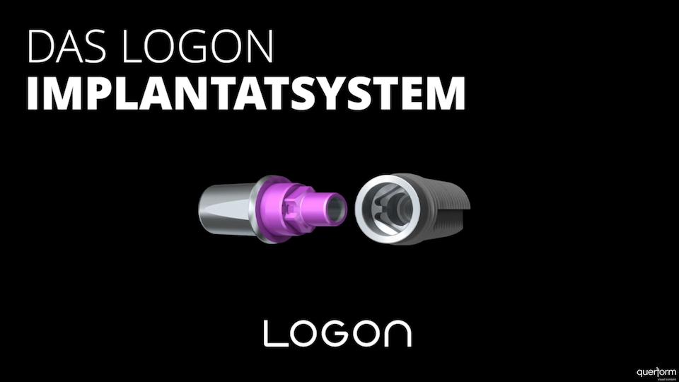 LOGON Implantatsystem