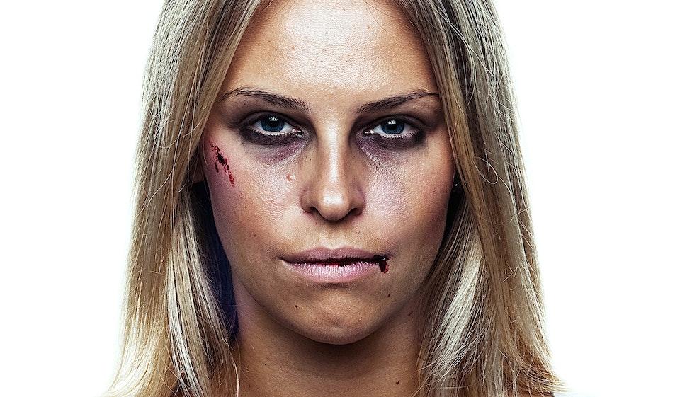 'Anti-Beauty' beaten_03