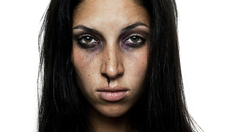 'Anti-Beauty' beaten_02