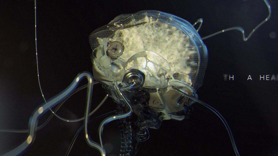 OnePlus3T brain_final2