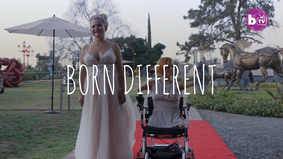 Limbless Bridesmaid Gives Sister Away _ BORN DIFFERENT